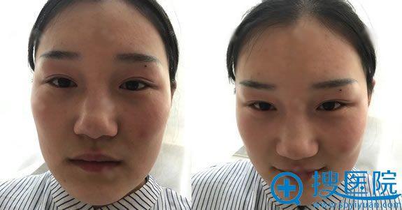 在老家做失败的韩式三点双眼皮