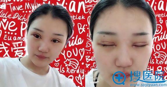 在奥德丽格做双眼皮修复1天效果