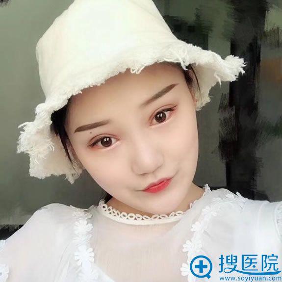 找北京奥德丽格马晓艳双眼皮修复20天后