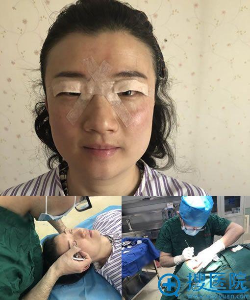 北京当代齐永乐做双眼皮修复图