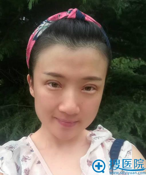 找北京齐永乐做双眼皮修复30天后