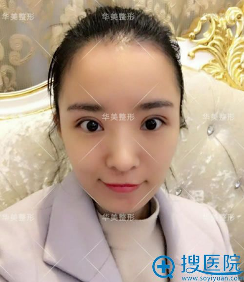 做完全切双眼皮手术7天拆线效果