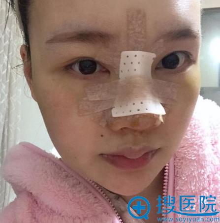 找上海薇琳医美顾陆健做完隆鼻三天图片