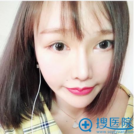上海薇琳医美顾陆健隆鼻案例术后两个月图片