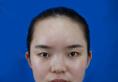 对比了长沙爱思特和亚韩整形医院后找吴蒙医生做的鼻综合隆鼻