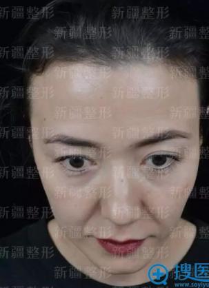 快看我找新疆整形医院徐应胤院长做面部线雕效果怎么样