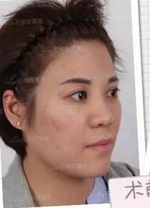 在这里叙述下我让石家庄美莱的姜涛做全脸自体脂肪填充的经历