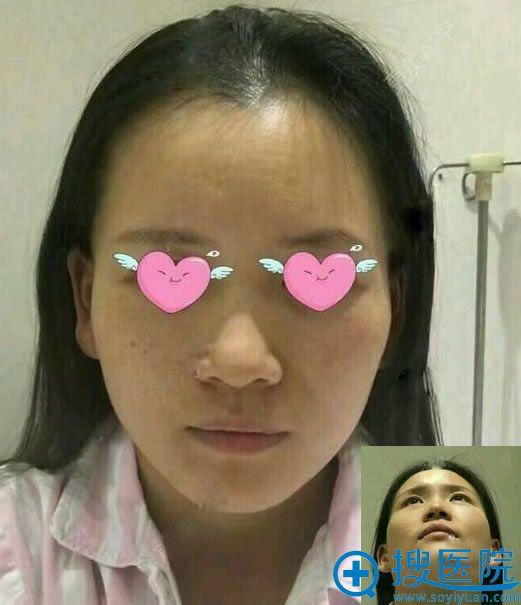 在北京南加做颧骨手术前