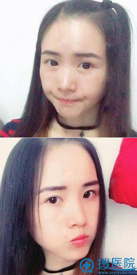 北京南加颧骨颧弓案例40天效果