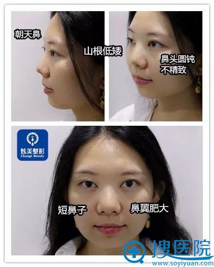 在北京炫美找马群做鼻子前