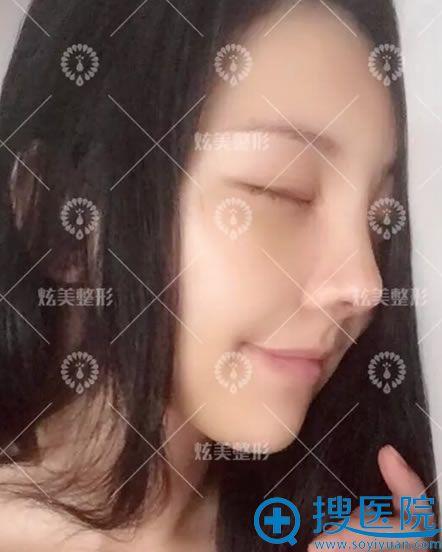 选择北京炫美马群做隆鼻7天效果