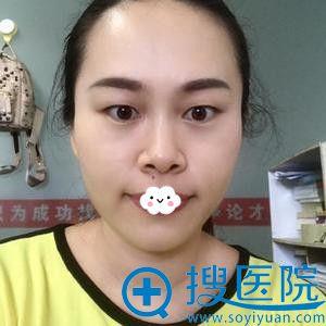 双眼皮术后1天以为深圳江南春天李钢韩式微创双眼皮失败了