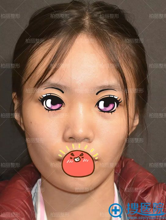 选择北京柏丽做隆鼻手术前