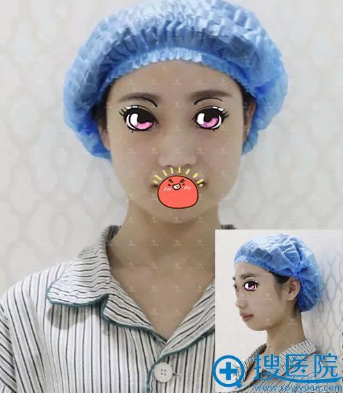 在北京莫琳娜做隆鼻手术前