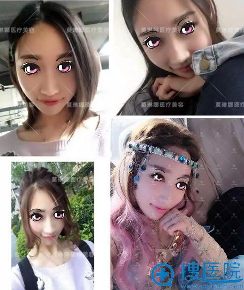 看北京莫琳娜李辉做鼻子效果怎么样