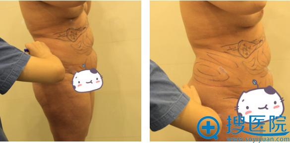 决定公开我去上海微蓝找林楠做腰腹部抽脂和大腿吸脂亲身经历