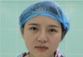 之前做的线雕隆鼻效果不好这次找长沙希美蒋松林做了鼻综合隆鼻