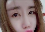 双眼皮失败后很多朋友推荐我来上海美莱说杜园园做眼修复很厉害