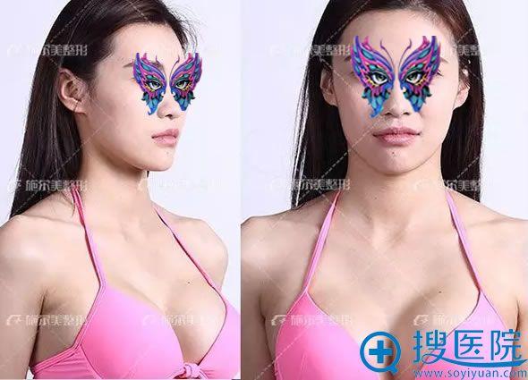 在南京施尔美做隆胸术后30天