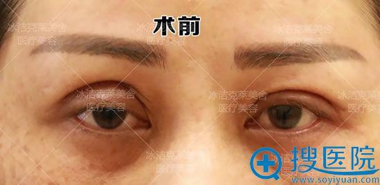 找张冰洁做修复前不对称的双眼皮