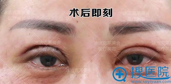 北京张冰洁双眼皮修复即刻效果