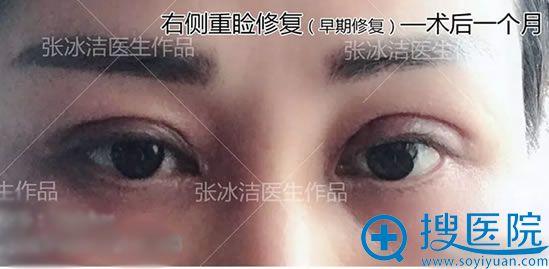张冰洁单侧双眼皮修复案例30天效果