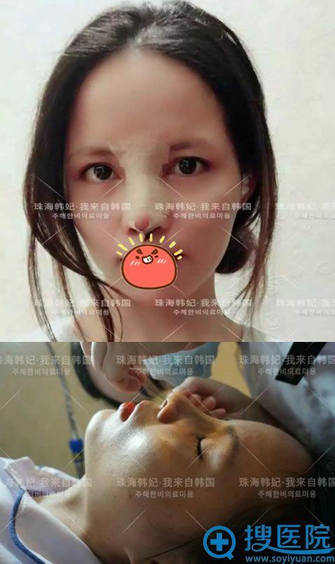 做完隆鼻手术恢复过程及拆线图