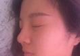 看了金华亚美整形医院张占召的案例后找邓泽臣做了鼻综合隆鼻