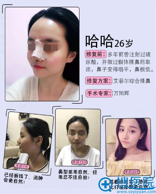 深圳多米勒医疗美容整形医院万旭辉隆鼻案例效果图