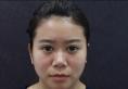 对比了丽水华美和美莱的案例后找丁鑫做了半肋骨鼻综合隆鼻