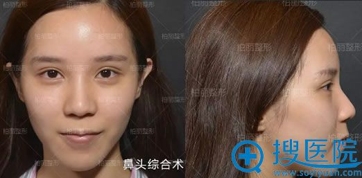 在北京柏丽整形做鼻头手术前