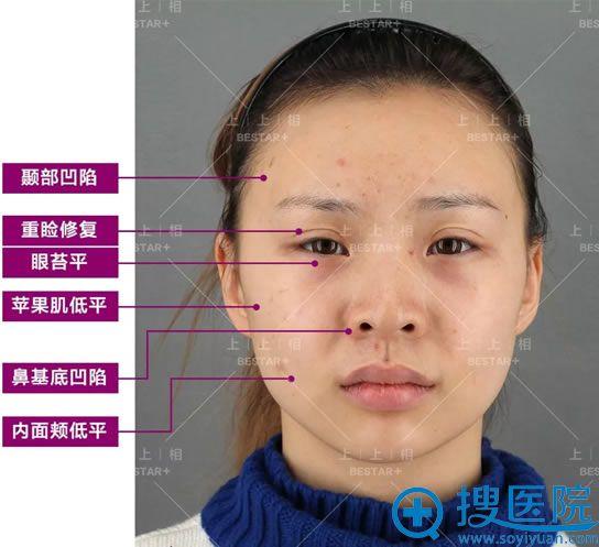 21岁空姐在北京上上相做脂肪填充前