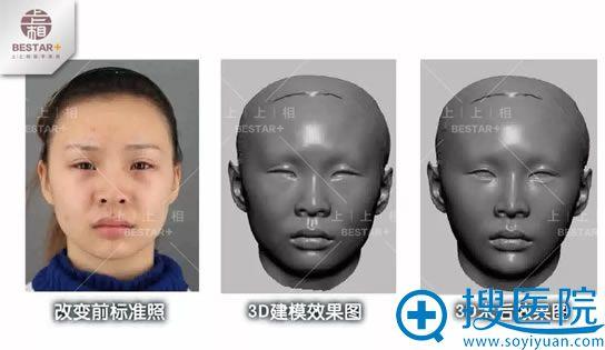 北京上上相术前3D建模效果图
