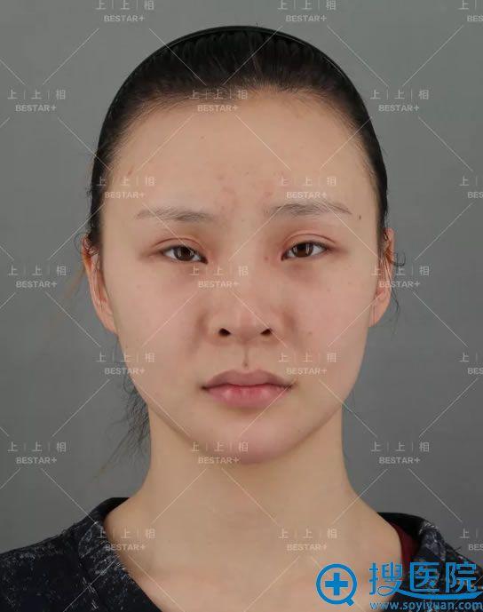 北京上上相郑楚蓉自体脂肪填充案例