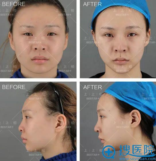 做自体脂肪填充全脸前后对比图