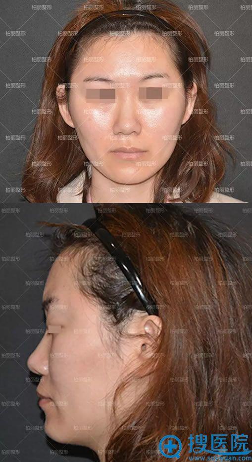 在北京柏丽做隆鼻和脂肪填充前
