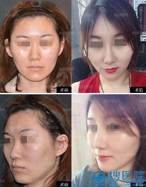 北京柏丽李劲良隆鼻案例对比图