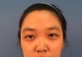 专程跑到上海俪人整形医院找曾高教授做了膨体鼻综合隆鼻