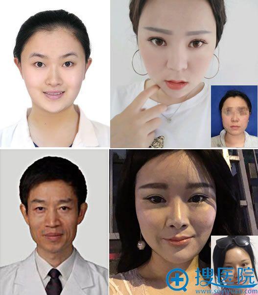 北京八大处杨斌和解芳下颌角案例对比