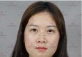 对比了烟台华美和华怡整形医院的案例后找聂瑞峰做了鼻综合隆鼻