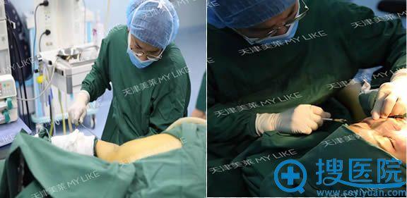 面部脂肪填充和多维立体吸脂手术过程