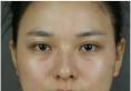 看朋友找上海首尔丽格洪性范做的削颧骨不错我也来做了下颌角