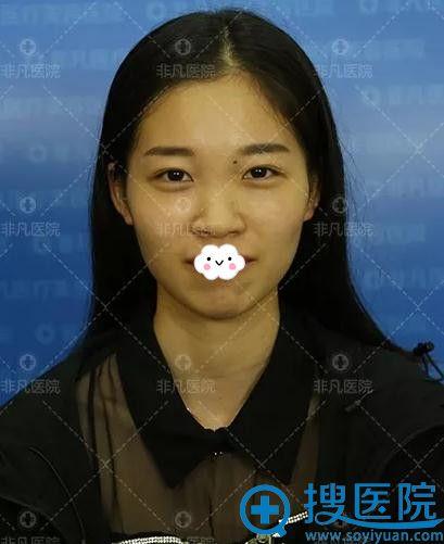 深圳非凡张佳佳注射艾莉薇玻尿酸隆鼻+垫下巴案例