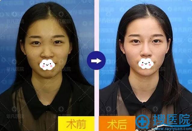 深圳非凡注射玻尿酸隆鼻+垫下巴术前术后效果对比
