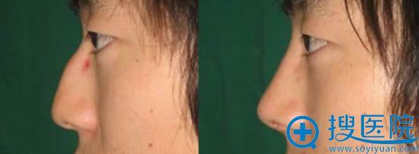 鞍山燕丽驼峰鼻综合整形前后对比效果