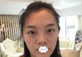 受抖音卸鼻子启发到深圳微姿康壮为处做自体软骨隆鼻综合改变