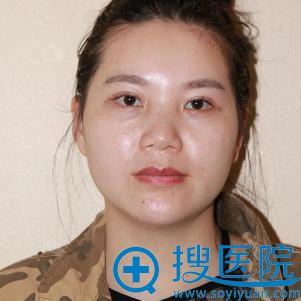 苏州紫馨肋软骨隆鼻案例