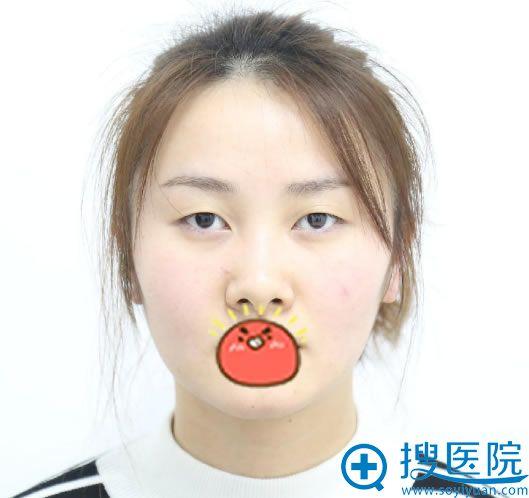 在北京华韩整形做双眼皮前