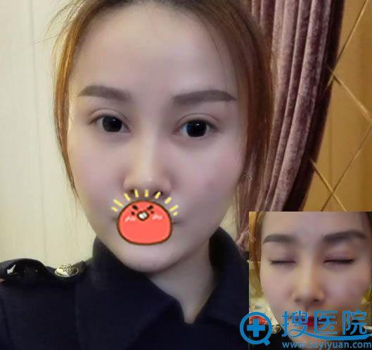 北京华韩谢立宁双眼皮案例