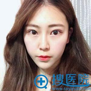 安徽新地医疗美容假体隆下巴+面部吸脂案例